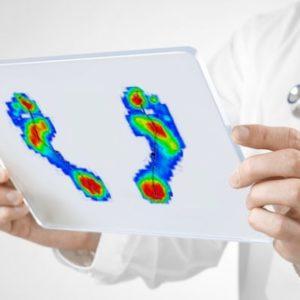 Valutazione baropodometrica: a chi e a cosa serve?