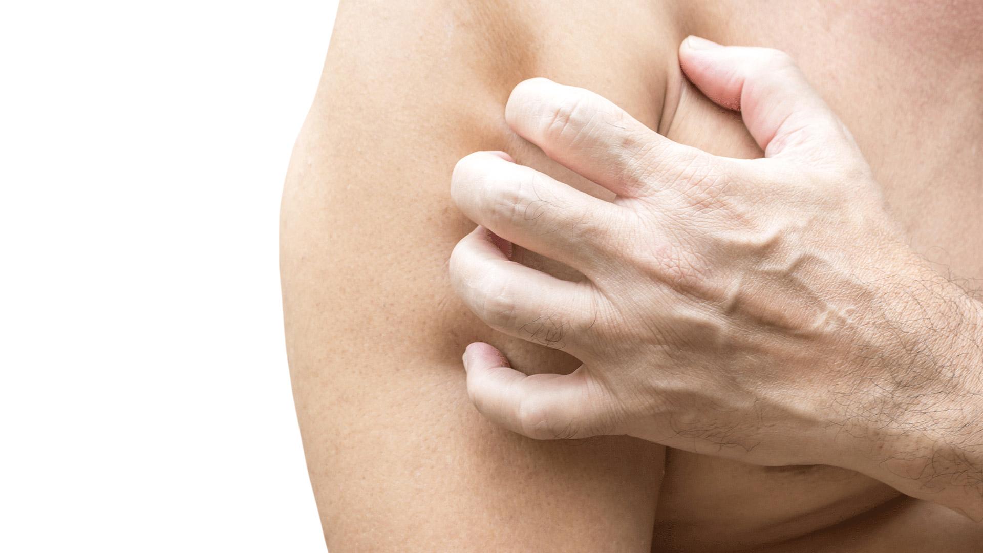 articolo dermatite