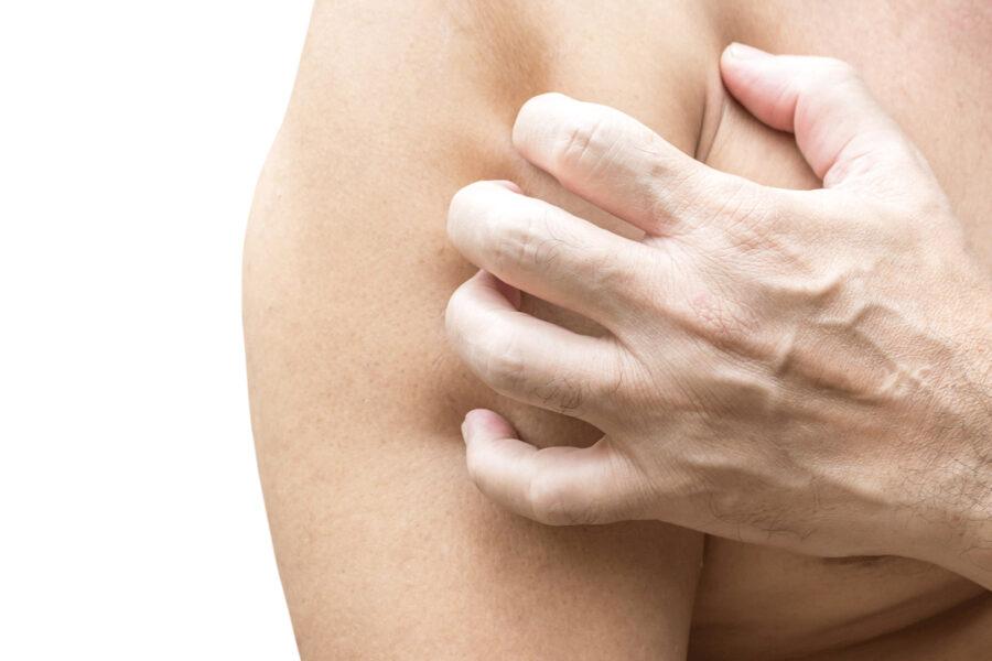 Pelle atopica: quando la pelle si squama